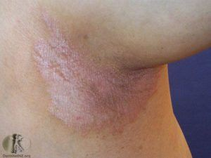 "Patches in the armpit seen with ""inverse"" psoriasis"