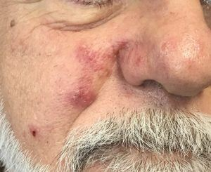 Before: inflammatory papules and pustules on the mid face characteristic of inflammatory rosacea.