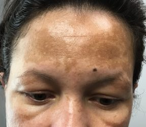 Before Triple-Therapy Cream
